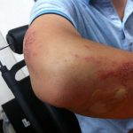 How to Determine about the Career of a Personal Injury Attorney